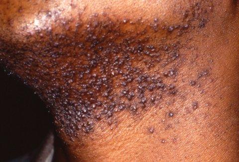 razor bumps